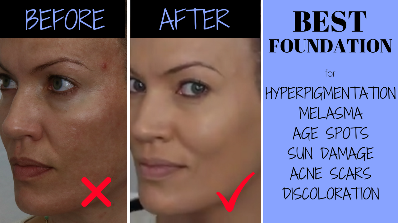 Best Foundation For Hyperpigmentation